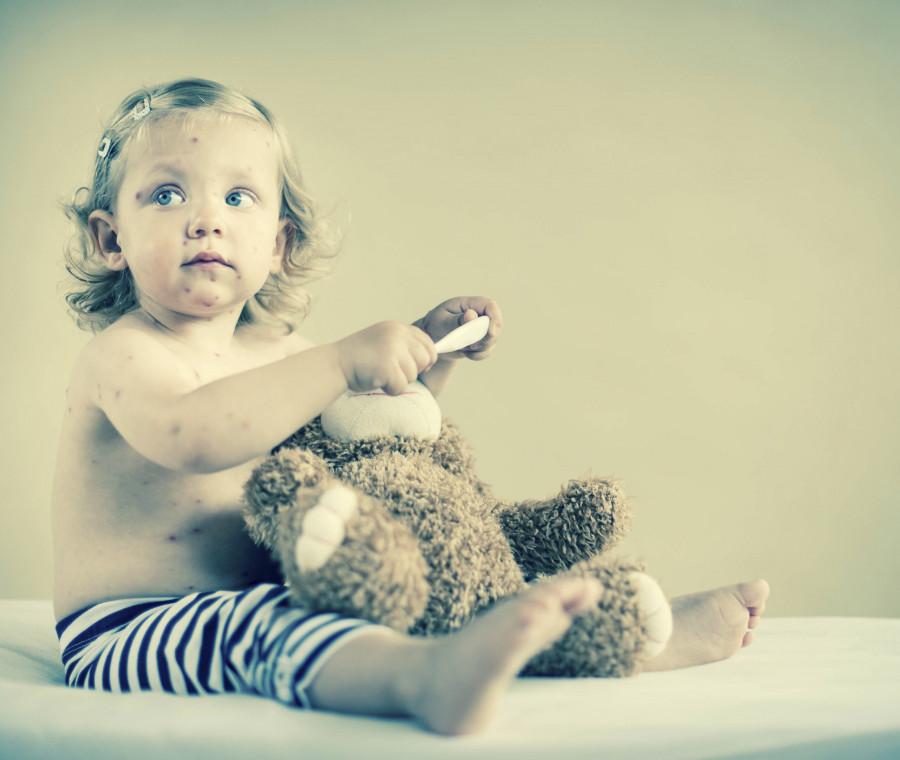 io-bambina-non-vaccinata-vi-racconto-cosa-significa