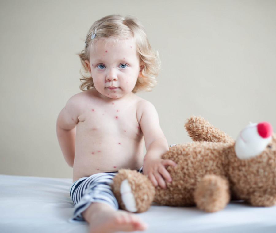 malattie-esantematiche-nei-bambini-come-riconoscerle-e-curarle