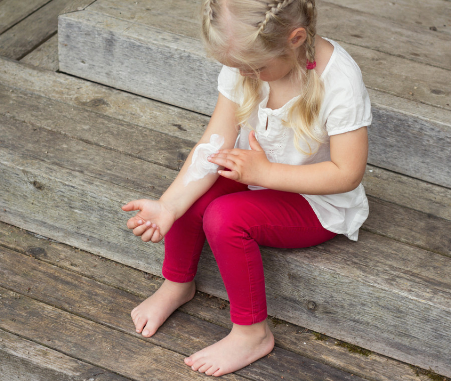 allergie-della-pelle-nei-bambini-come-distinguerle-e-trattarle