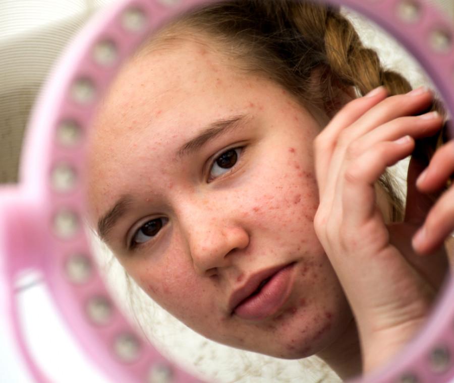 l-acne-problema-numero-uno-degli-adolescenti-si-puo-curare