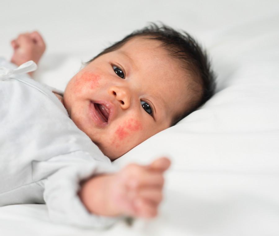 dermatite-atopica-nel-neonato