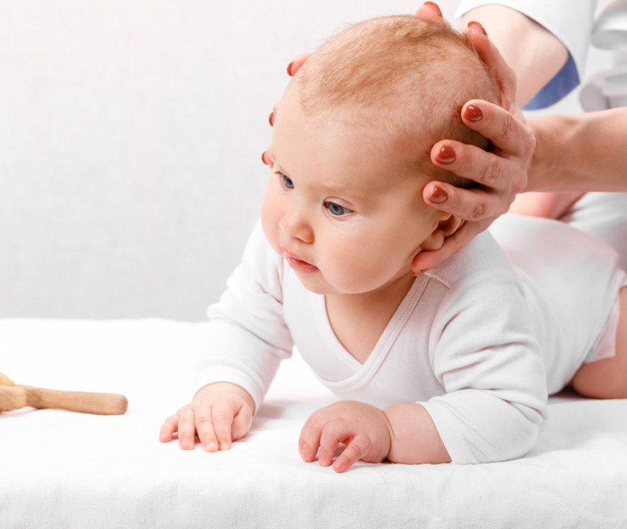 dolicocefalia-neonato