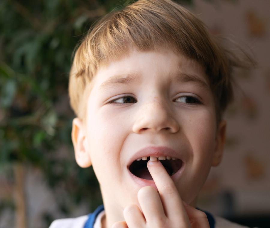 agenesie-dentali
