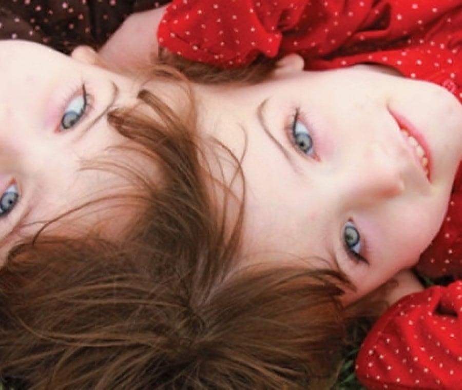 gemelle-siamesi