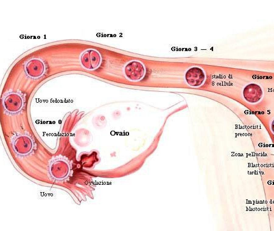 impianto-ovulo-fecondato
