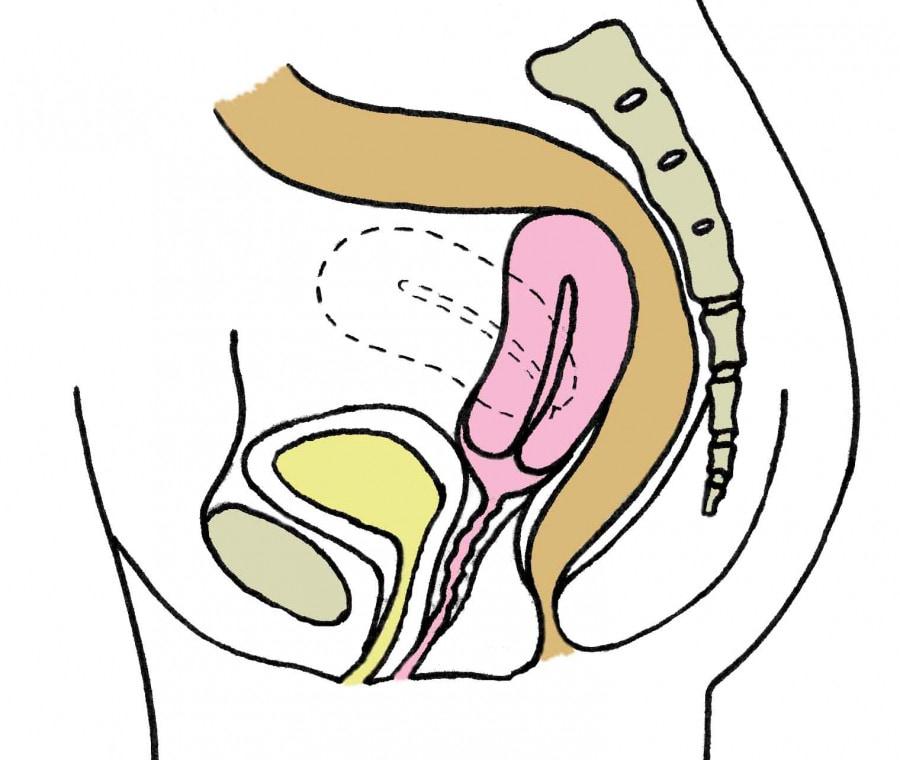 utero-retroverso_1